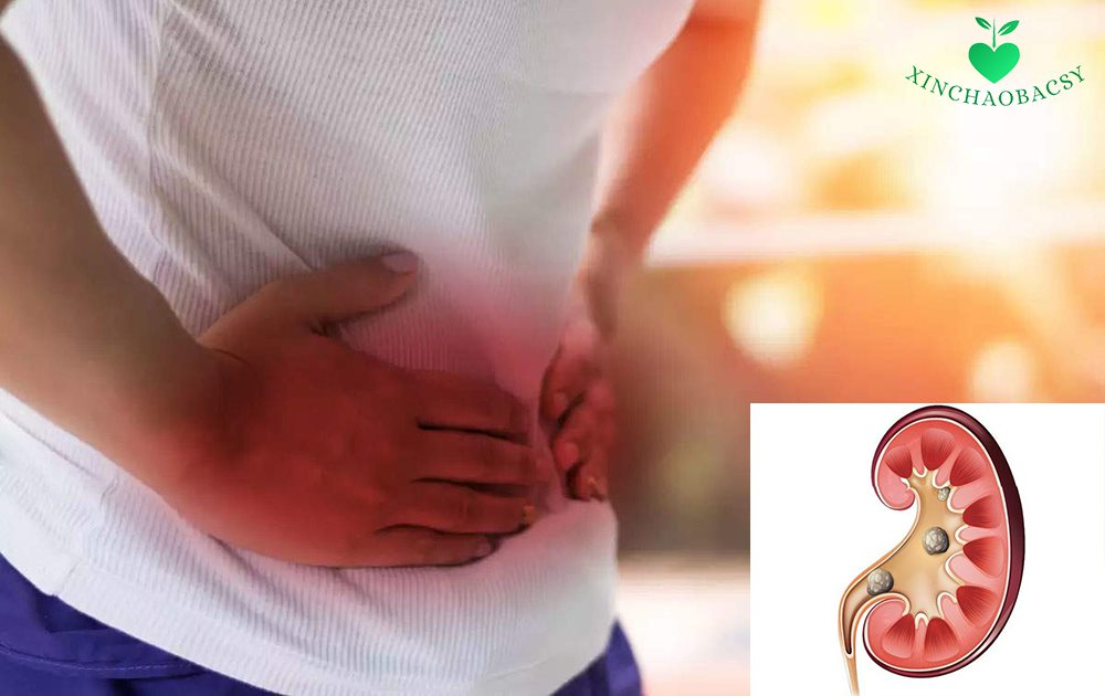 Bạn đã biết cách điều trị cơn đau quặn thận do sỏi thận, sỏi tiết niệu?